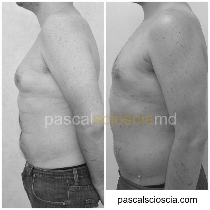 Ginecomastia chirurgia estetica del seno maschile - Pascal Scioscia Chirurgo plastico Roma