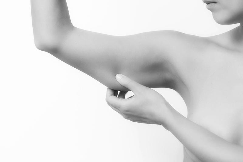 Lifting cosce e braccia dott. scioscia