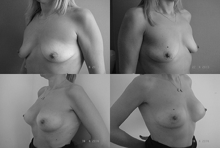 mastoplastica_additiva_chirurgia_seno_foto_prima_dopo_dott_scioscia_roma_EUR_appia