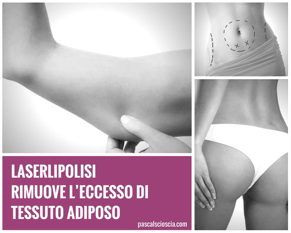 Laserlipolisi tecnica laser per la rimozione del tessuto adiposo Roma EUR, Appia San Giovanni, Albano Laziale