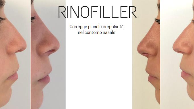 Rinofiller Roma Pascal Scioscia chirurgo plastico Roma EUR Casal Palocco Albano Laziale Roma EUR