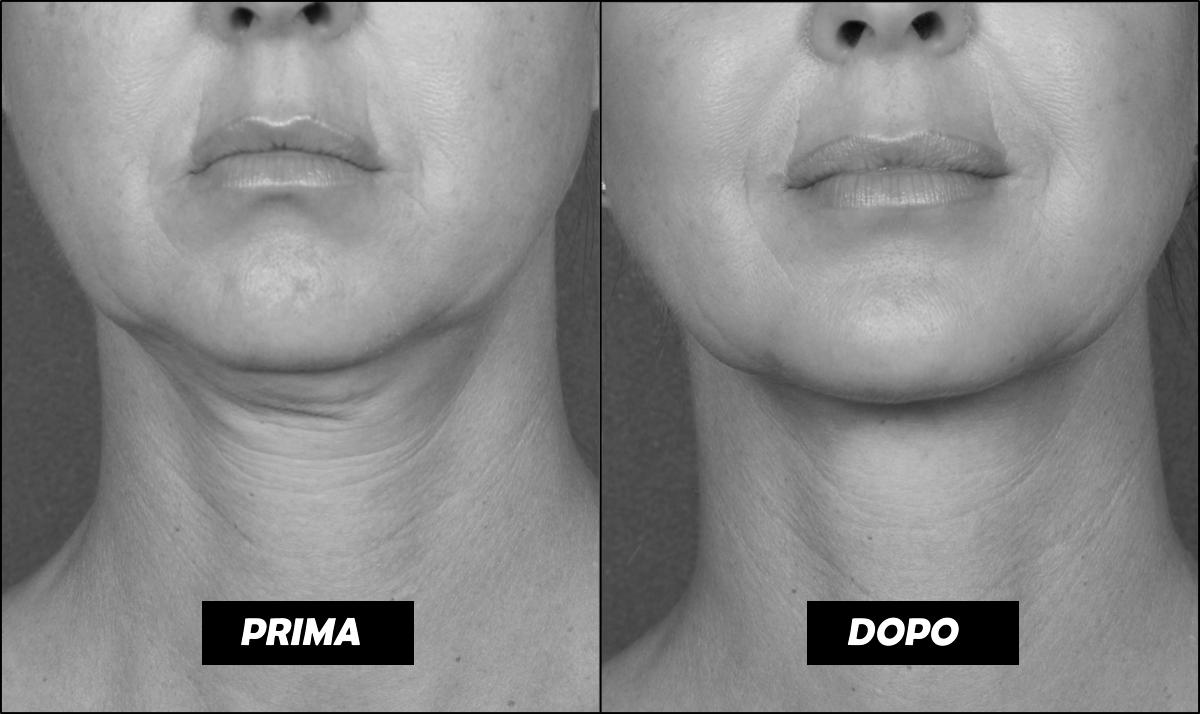 BELKYRA trattamento non chirurgico per eliminare il doppio mento