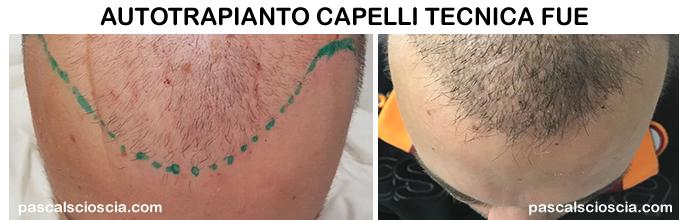 Trapianto dei capelli con tecnica FUE Roma