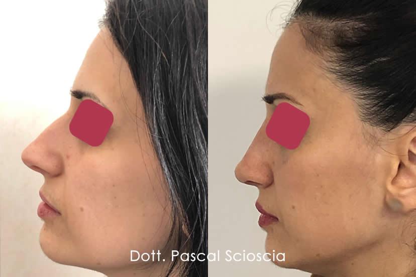 Rinoplastica Chirurgia Estetica del naso dott. Pascal Scioscia Roma EUR